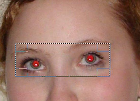 Teana für die Augen von den dunklen Kreisen